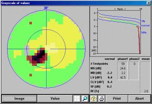 8b51a757ec ... έλεγχο και ιδιαίτερα όταν υπάρχει η υποψία παθήσεων όπως το γλαύκωμα